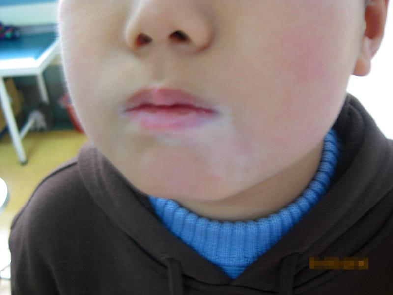 儿童得了白癜风该怎么去治疗